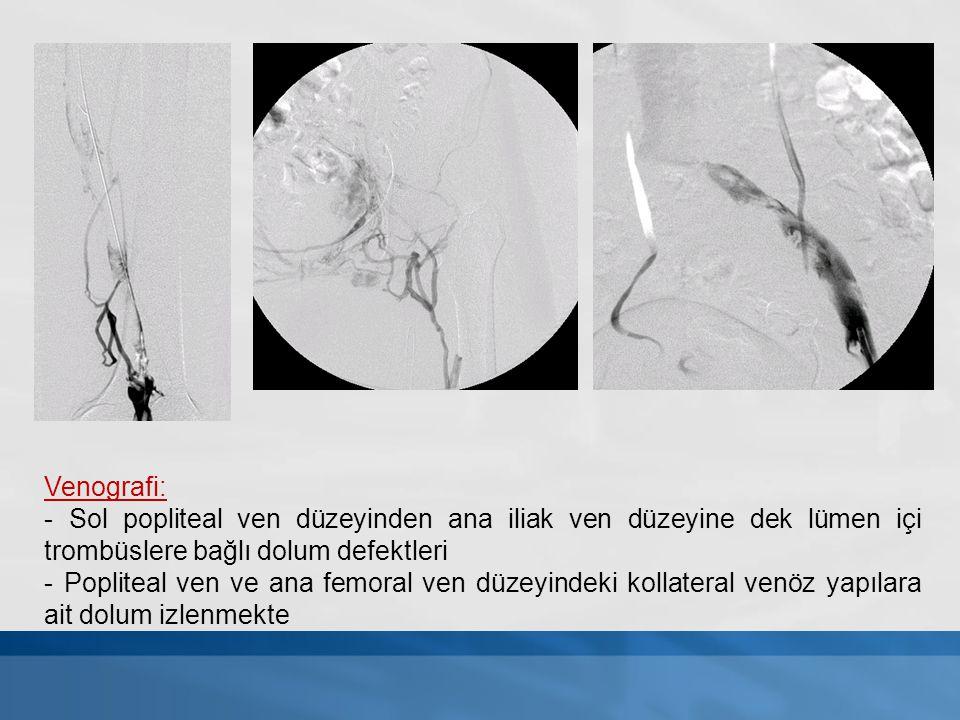 Venografi: - Sol popliteal ven düzeyinden ana iliak ven düzeyine dek lümen içi trombüslere bağlı dolum defektleri - Popliteal ven ve ana femoral ven d