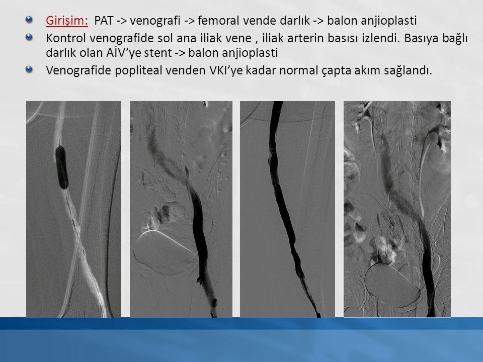 Girişim: PAT -> venografi -> femoral vende darlık -> balon anjioplasti Kontrol venografide sol ana iliak vene, iliak arterin basısı izlendi. Basıya ba