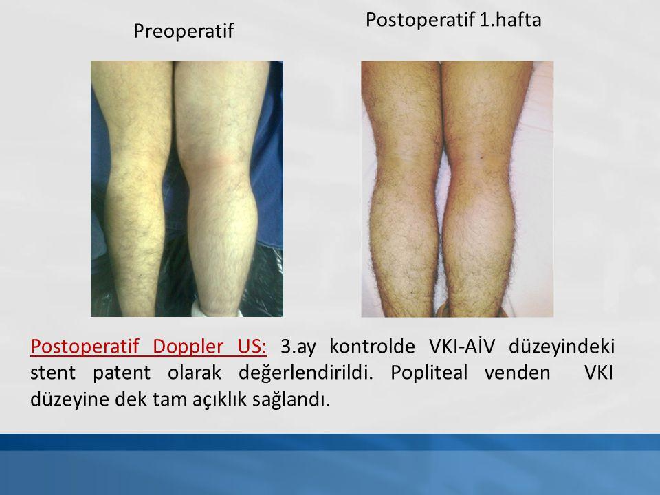 Postoperatif 1.hafta Preoperatif Postoperatif Doppler US: 3.ay kontrolde VKI-AİV düzeyindeki stent patent olarak değerlendirildi. Popliteal venden VKI