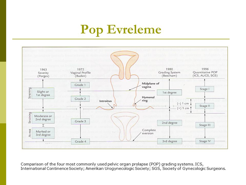 Pop Evreleme Comparison of the four most commonly used pelvic organ prolapse (POP) grading systems. ICS, International Continence Society; Amerikan Ur