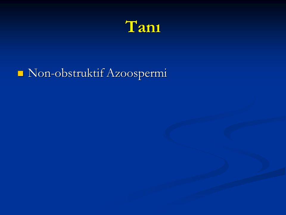 Tanı Non-obstruktif Azoospermi Non-obstruktif Azoospermi