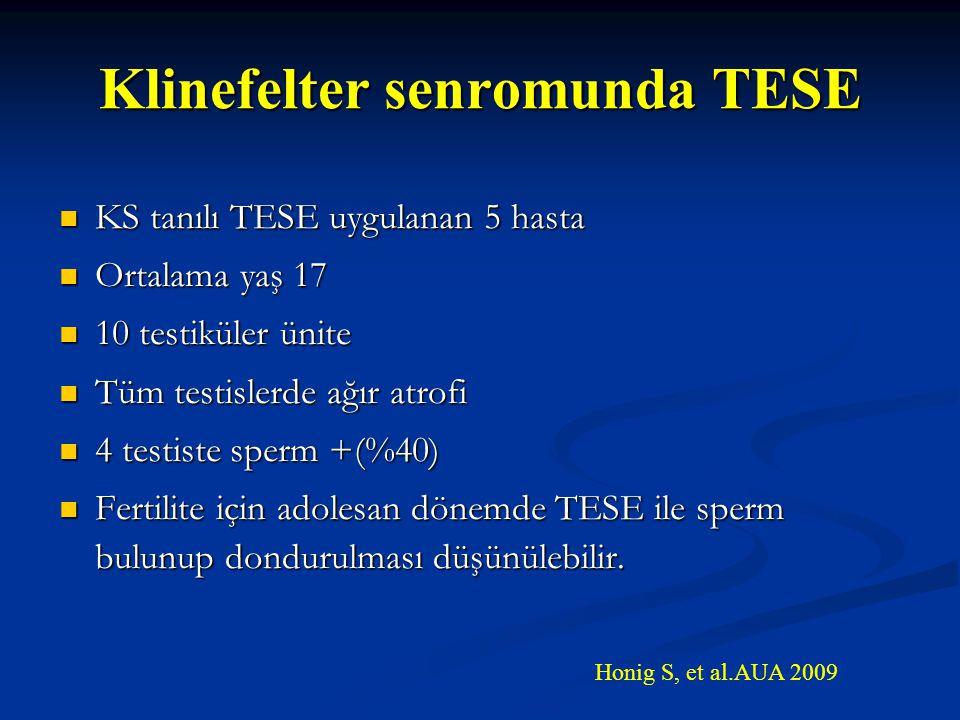 Klinefelter senromunda TESE KS tanılı TESE uygulanan 5 hasta KS tanılı TESE uygulanan 5 hasta Ortalama yaş 17 Ortalama yaş 17 10 testiküler ünite 10 t