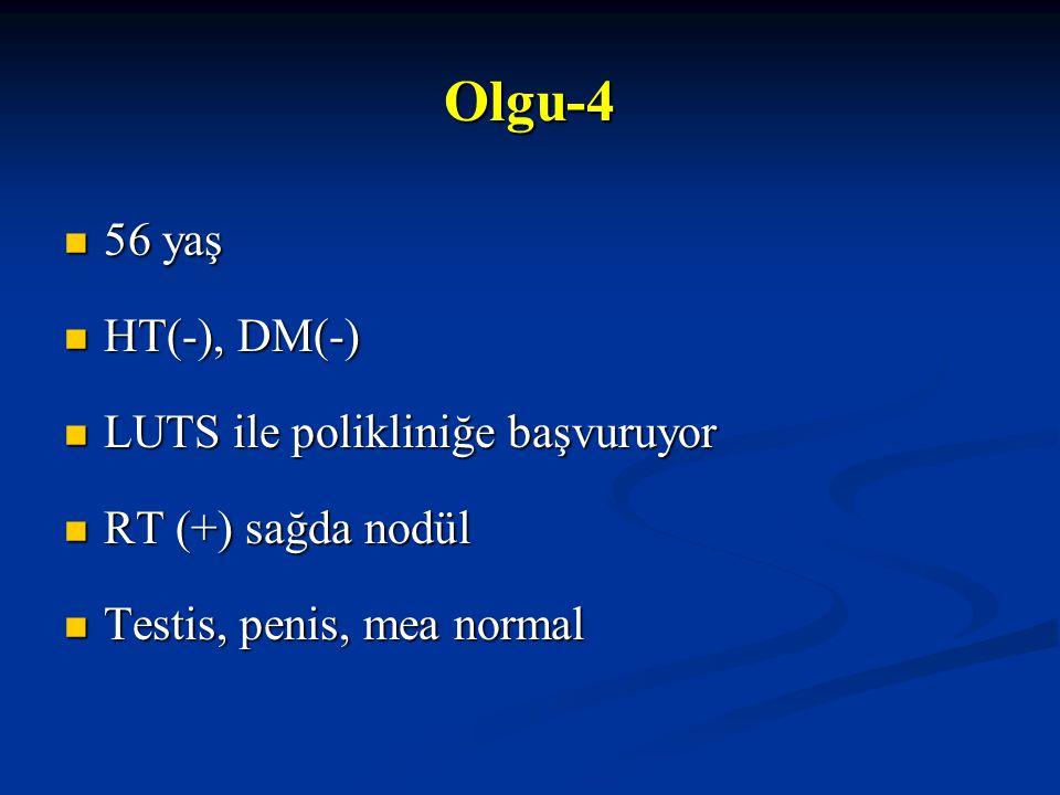 Olgu-4 56 yaş 56 yaş HT(-), DM(-) HT(-), DM(-) LUTS ile polikliniğe başvuruyor LUTS ile polikliniğe başvuruyor RT (+) sağda nodül RT (+) sağda nodül T