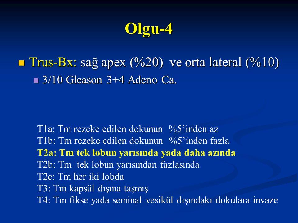 Trus-Bx: sağ apex (%20) ve orta lateral (%10) Trus-Bx: sağ apex (%20) ve orta lateral (%10) 3/10 Gleason 3+4 Adeno Ca. 3/10 Gleason 3+4 Adeno Ca. Olgu