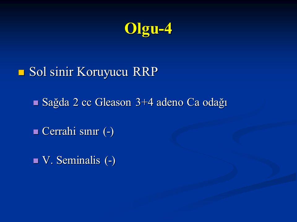 Sol sinir Koruyucu RRP Sol sinir Koruyucu RRP Sağda 2 cc Gleason 3+4 adeno Ca odağı Sağda 2 cc Gleason 3+4 adeno Ca odağı Cerrahi sınır (-) Cerrahi sı