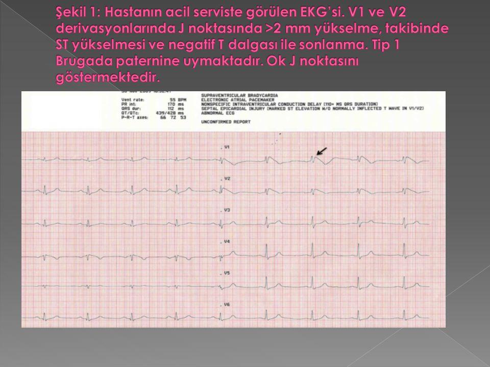  EKG bulguları ve kliniği Brugada Sendromu'nu düşündüren hastanın laboratuar sonuçlarında kardiyak enzim değerleri normal sınırlarda bulundu.