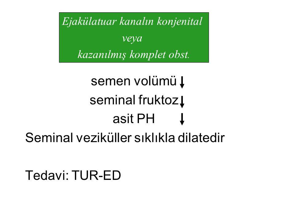 semen volümü seminal fruktoz asit PH Seminal veziküller sıklıkla dilatedir Tedavi: TUR-ED Ejakülatuar kanalın konjenital veya kazanılmış komplet obst.