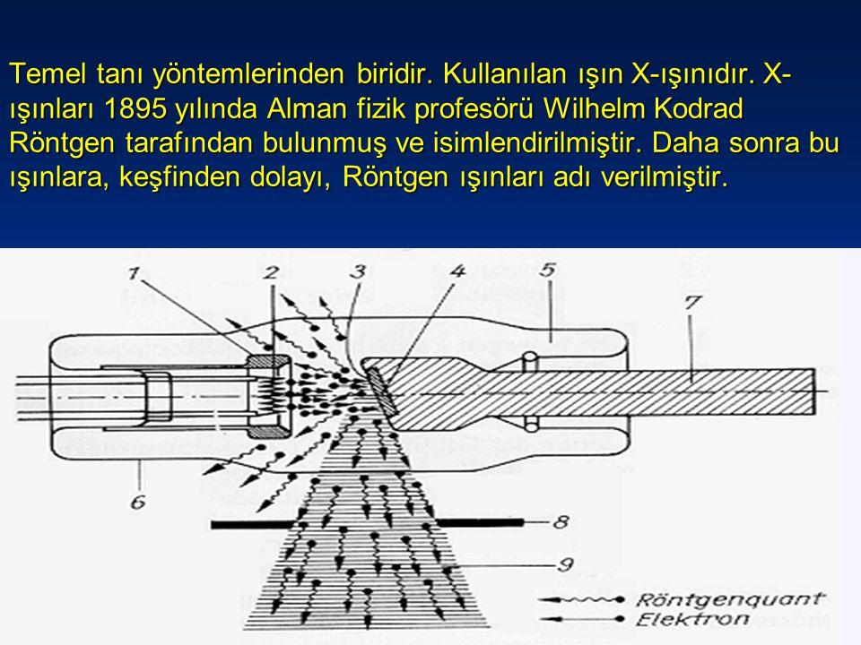 Temel tanı yöntemlerinden biridir. Kullanılan ışın X-ışınıdır. X- ışınları 1895 yılında Alman fizik profesörü Wilhelm Kodrad Röntgen tarafından bulunm