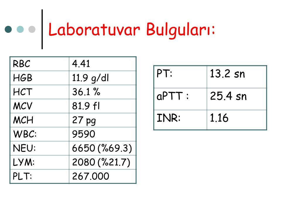 Laboratuvar Bulguları: RBC4.41 HGB11.9 g/dl HCT36.1 % MCV81.9 fl MCH27 pg WBC:9590 NEU:6650 (%69.3) LYM:2080 (%21.7) PLT:267.000 PT:13.2 sn aPTT :25.4