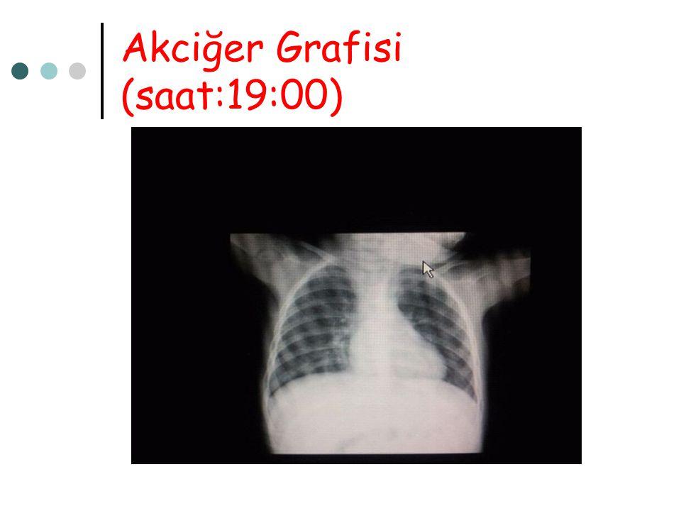 Akciğer Grafisi (saat:19:00)