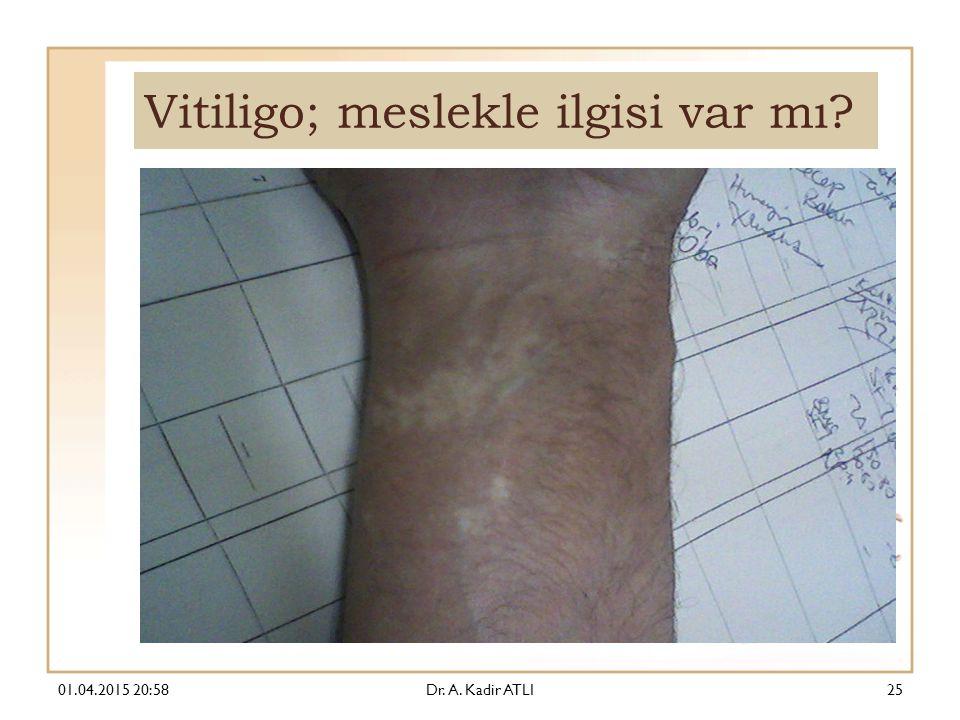 Vitiligo; meslekle ilgisi var mı? 01.04.2015 21:00Dr. A. Kadir ATLI25