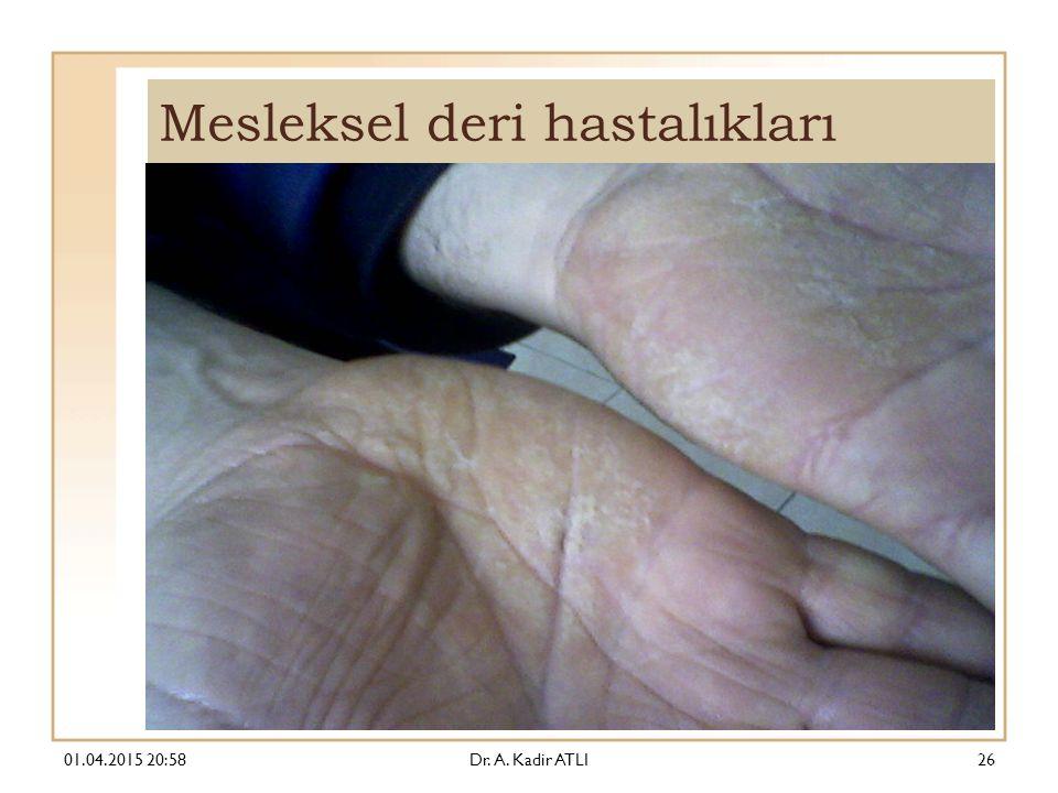 Mesleksel deri hastalıkları 01.04.2015 21:00Dr. A. Kadir ATLI26