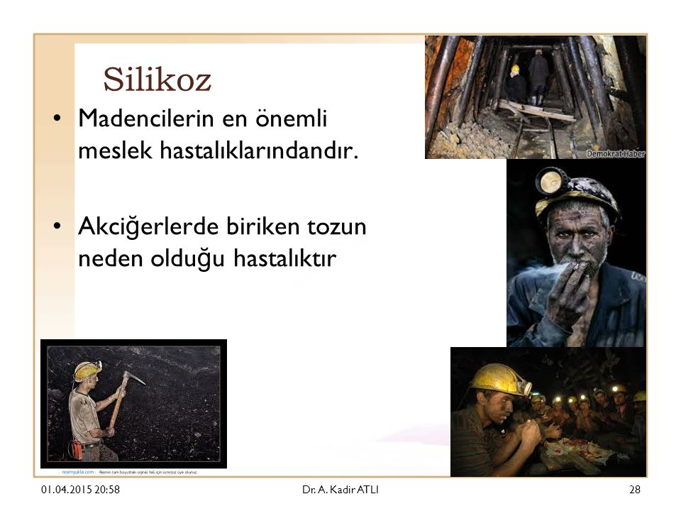 Silikoz Madencilerin en önemli meslek hastalıklarındandır.