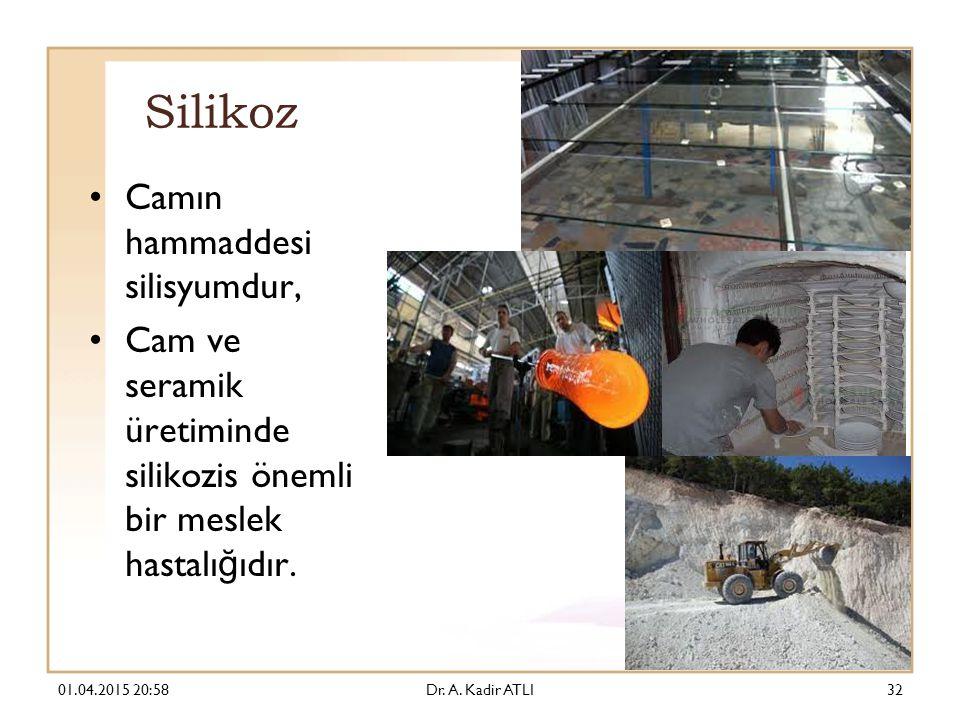 Silikoz Camın hammaddesi silisyumdur, Cam ve seramik üretiminde silikozis önemli bir meslek hastalı ğ ıdır.