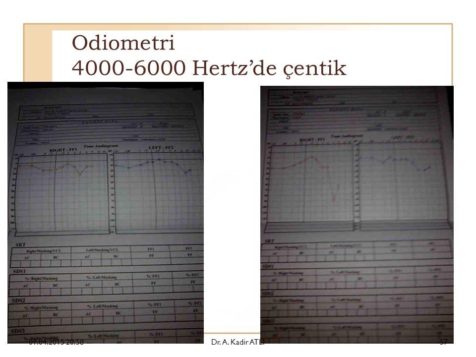Odiometri 4000-6000 Hertz'de çentik 01.04.2015 21:00Dr. A. Kadir ATLI57