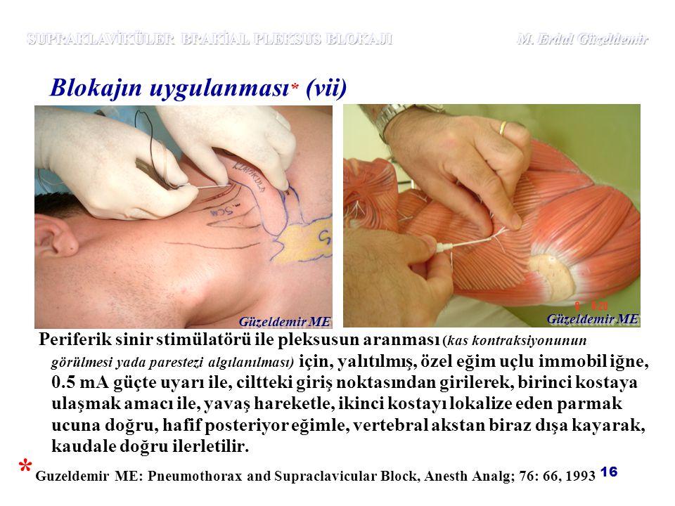 16 Periferik sinir stimülatörü ile pleksusun aranması (kas kontraksiyonunun görülmesi yada parestezi algılanılması) için, yalıtılmış, özel eğim uçlu i