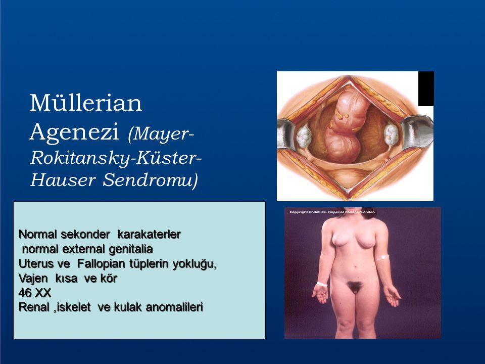 Müllerian Agenezi (Mayer- Rokitansky-Küster- Hauser Sendromu) Normal sekonder karakaterler normal external genitalia normal external genitalia Uterus