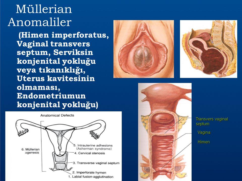 Müllerian Anomaliler (Himen imperforatus, Vaginal transvers septum, Serviksin konjenital yokluğu veya tıkanıklığı, Uterus kavitesinin olmaması, Endome