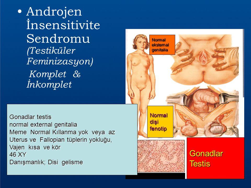 Androjen İnsensitivite Sendromu (Testiküler Feminizasyon) Komplet & İnkomplet Normaleksternalgenitalia Normaldişifenotip GonadlarTestis Gonadlar testi