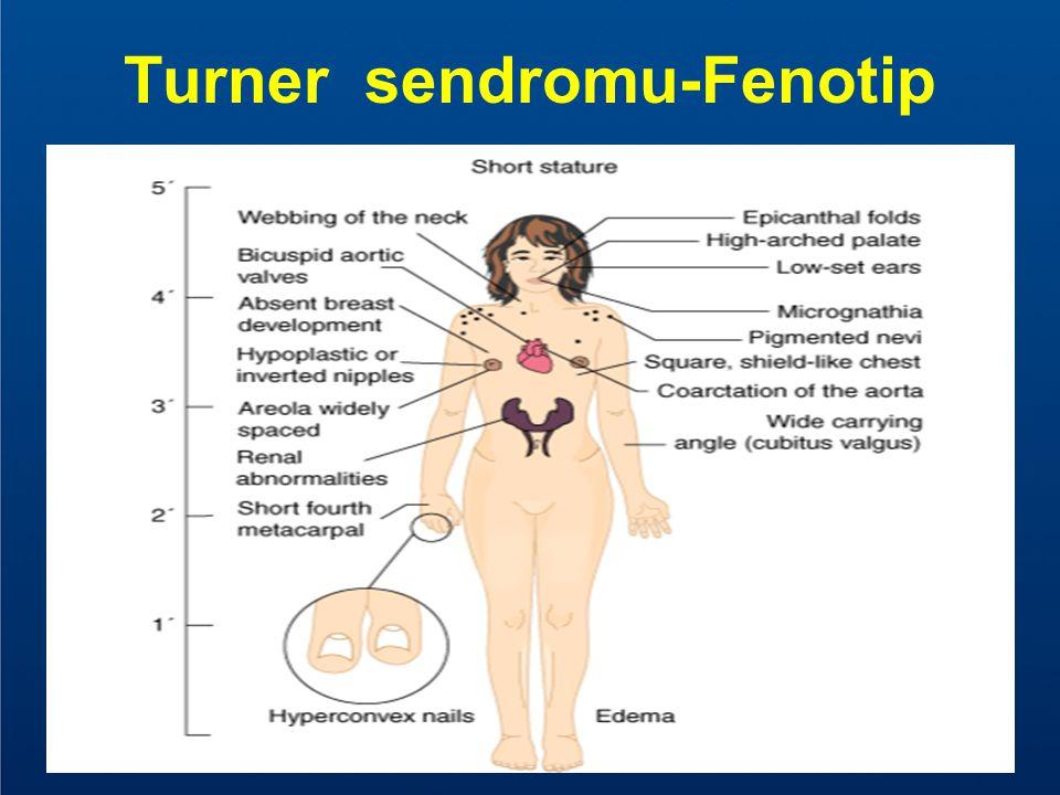 Turner sendromu-Fenotip