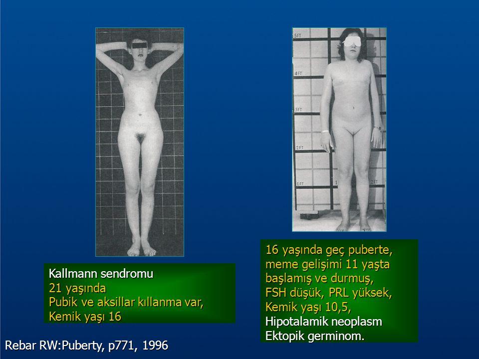 Rebar RW:Puberty, p771, 1996 Kallmann sendromu 21 yaşında Pubik ve aksillar kıllanma var, Kemik yaşı 16 16 yaşında geç puberte, meme gelişimi 11 yaşta