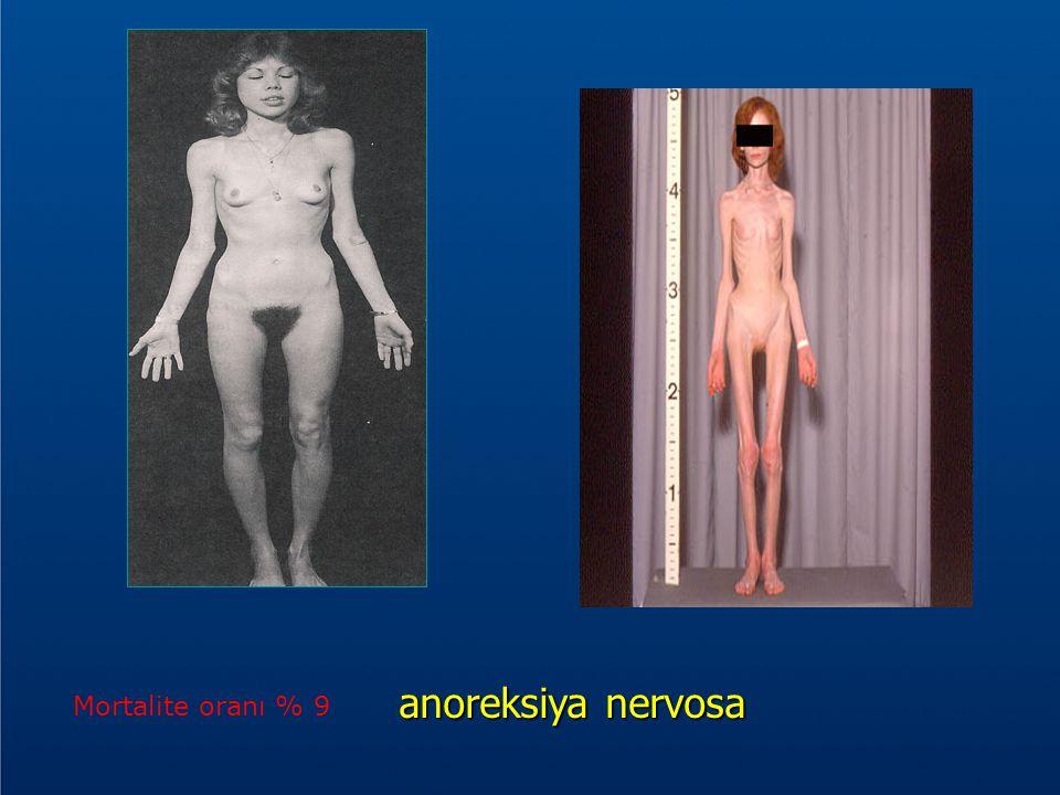 anoreksiya nervosa anoreksiya nervosa Mortalite oranı % 9