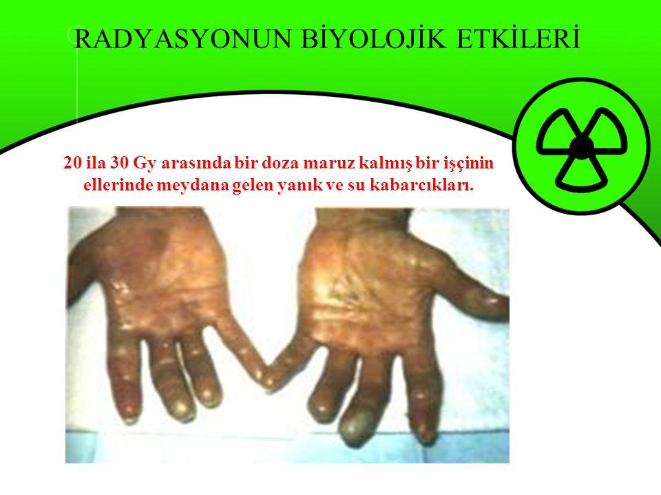 20 ila 30 Gy arasında bir doza maruz kalmış bir işçinin ellerinde meydana gelen yanık ve su kabarcıkları. RADYASYONUN BİYOLOJİK ETKİLERİ