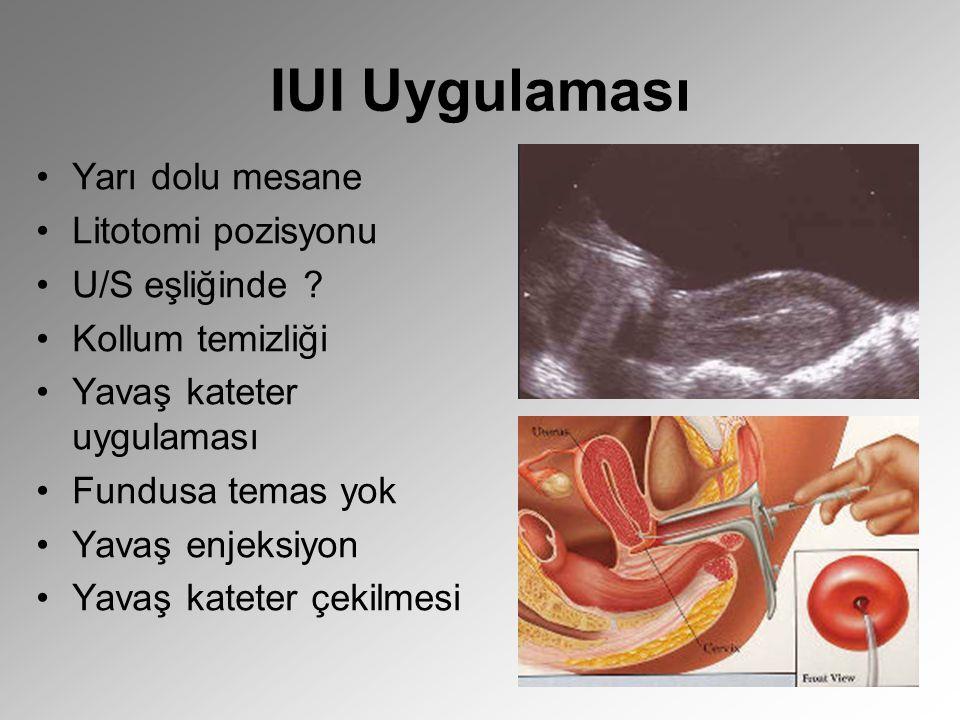 IUI Uygulaması Yarı dolu mesane Litotomi pozisyonu U/S eşliğinde ? Kollum temizliği Yavaş kateter uygulaması Fundusa temas yok Yavaş enjeksiyon Yavaş