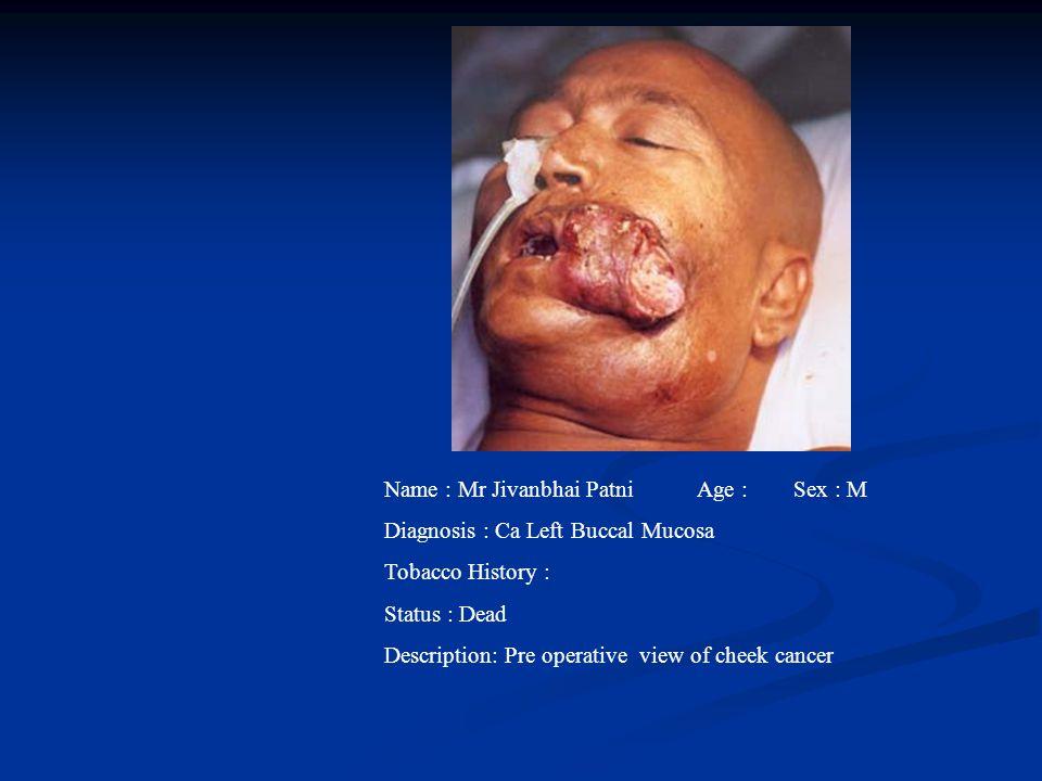 Name : Mr Jivanbhai PatniAge : Sex : M Diagnosis : Ca Left Buccal Mucosa Tobacco History : Status : Dead Description: Pre operative view of cheek canc