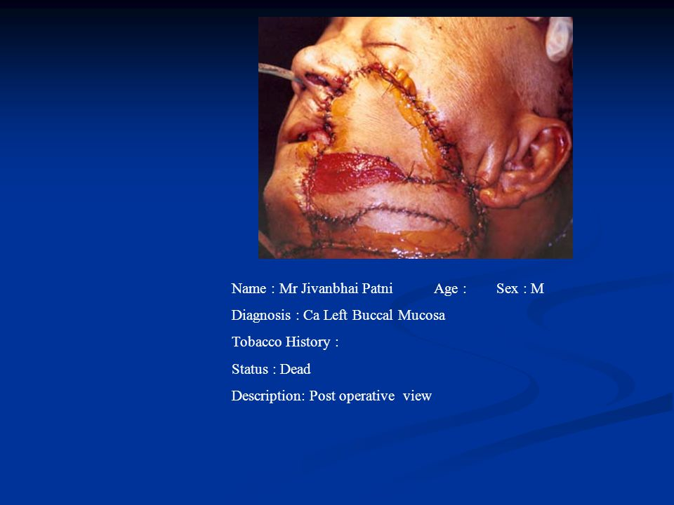 Name : Mr Jivanbhai PatniAge : Sex : M Diagnosis : Ca Left Buccal Mucosa Tobacco History : Status : Dead Description: Post operative view