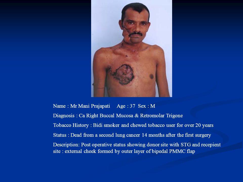 Name : Mr Mani Prajapati Age : 37 Sex : M Diagnosis : Ca Right Buccal Mucosa & Retromolar Trigone Tobacco History : Bidi smoker and chewed tobacco use