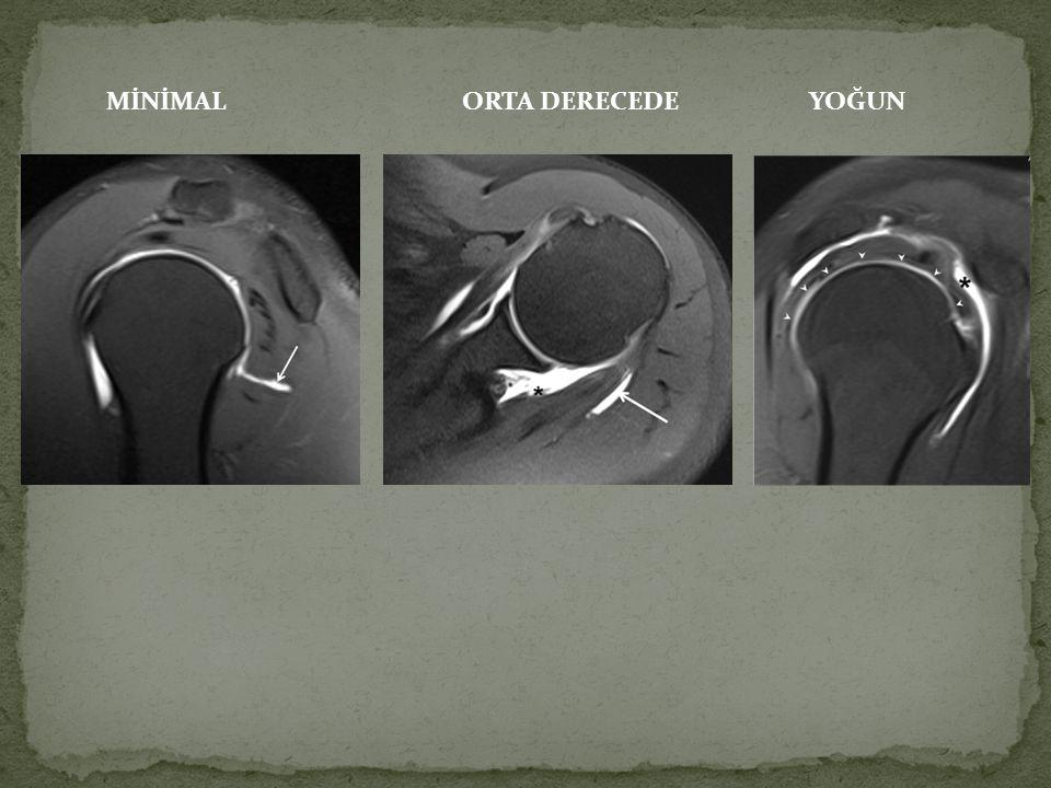 Hastanın ve radyoloğun radyasyon maruziyeti ve ayrıca iyotlu kontrast maddenin sinovyal toksisitesi artrografi için flouroskopi kullanımını sınırlarken, klinik olarak önemli stabilizan yapıların zarar görme ihtimali klasik yaklaşım olan anteroinferior tekniği de sınırlandırmıştır.