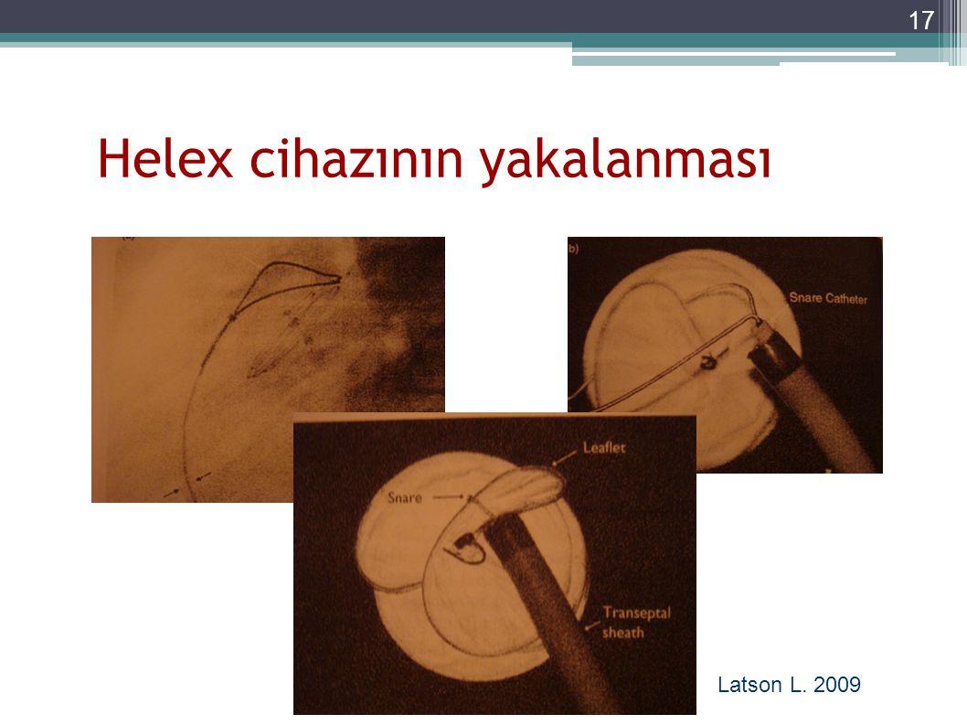 Helex cihazının yakalanması 17 Latson L. 2009
