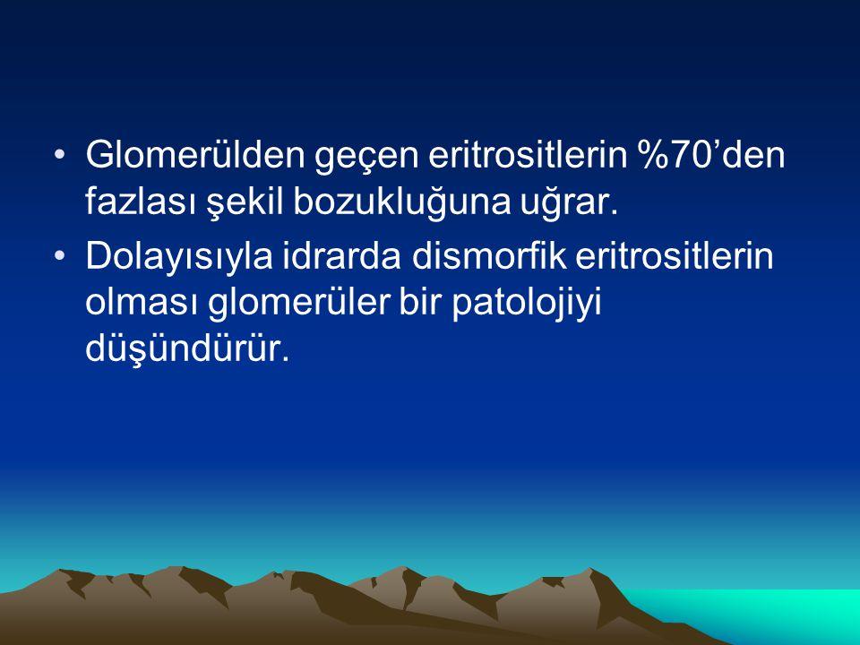 Glomerülden geçen eritrositlerin %70'den fazlası şekil bozukluğuna uğrar. Dolayısıyla idrarda dismorfik eritrositlerin olması glomerüler bir patolojiy