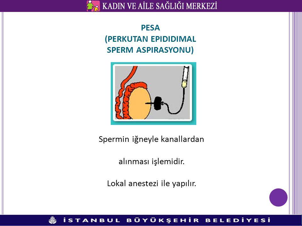 PESA (PERKUTAN EPIDIDIMAL SPERM ASPIRASYONU) Spermin iğneyle kanallardan alınması işlemidir. Lokal anestezi ile yapılır.