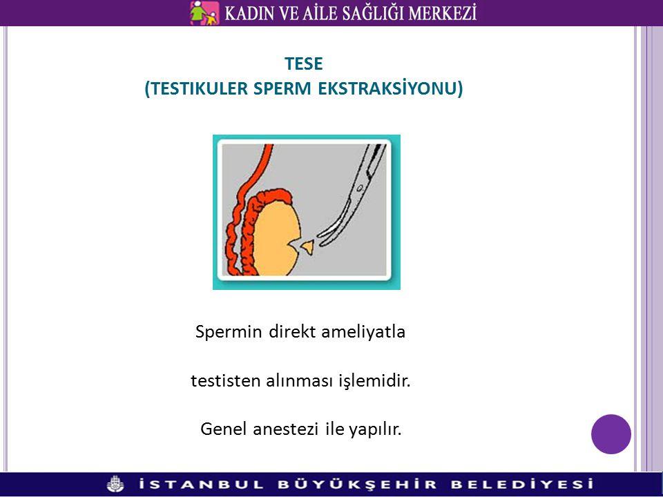 TESE (TESTIKULER SPERM EKSTRAKSİYONU) Spermin direkt ameliyatla testisten alınması işlemidir. Genel anestezi ile yapılır.