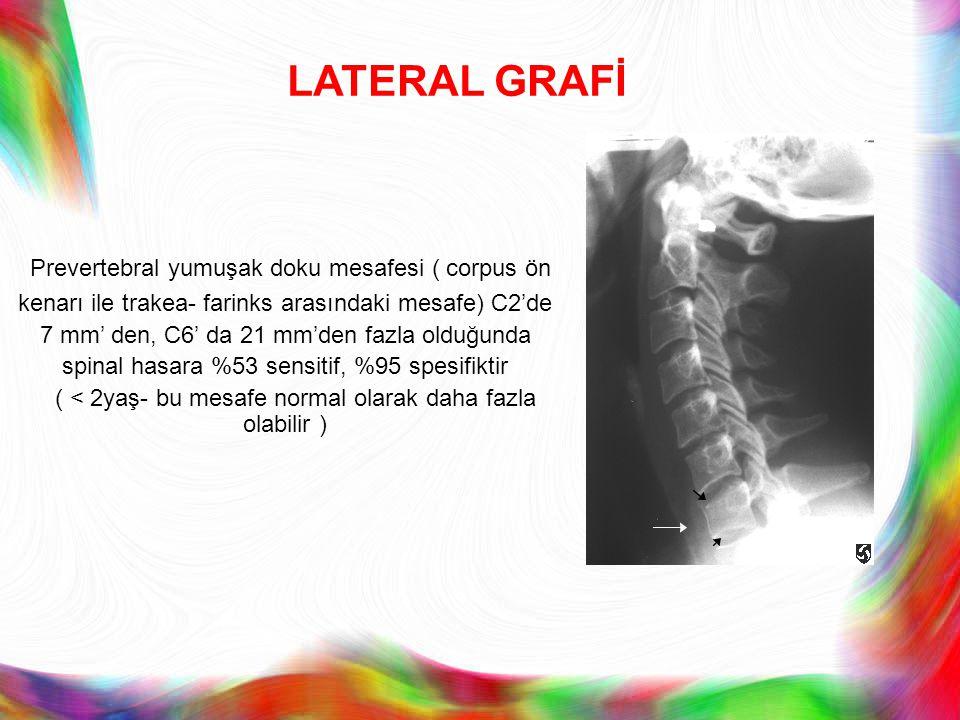 Prevertebral yumuşak doku mesafesi ( corpus ön kenarı ile trakea- farinks arasındaki mesafe) C2'de 7 mm' den, C6' da 21 mm'den fazla olduğunda spinal