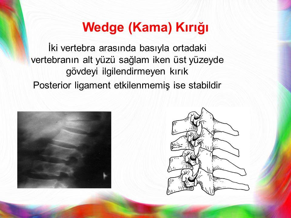 Wedge (Kama) Kırığı İki vertebra arasında basıyla ortadaki vertebranın alt yüzü sağlam iken üst yüzeyde gövdeyi ilgilendirmeyen kırık Posterior ligame