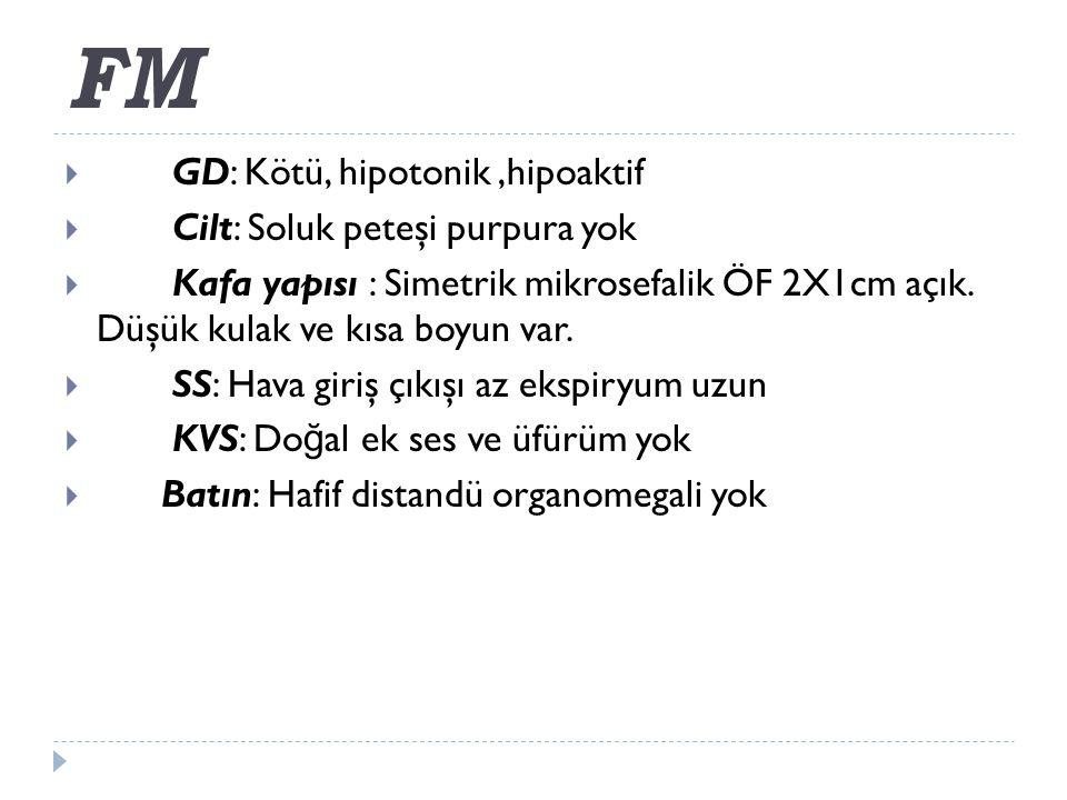 FM  GD: Kötü, hipotonik,hipoaktif  Cilt: Soluk peteşi purpura yok  Kafa yapısı : Simetrik mikrosefalik ÖF 2X1cm açık.
