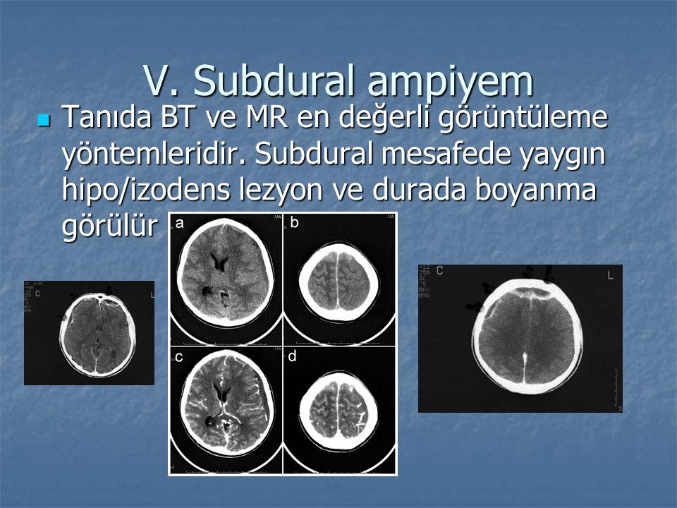 Tanıda BT ve MR en değerli görüntüleme yöntemleridir. Subdural mesafede yaygın hipo/izodens lezyon ve durada boyanma görülür Tanıda BT ve MR en değerl