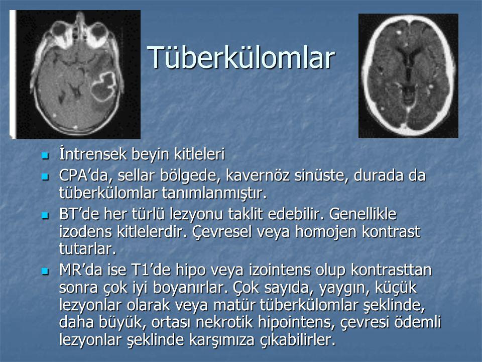 Tüberkülomlar İntrensek beyin kitleleri İntrensek beyin kitleleri CPA'da, sellar bölgede, kavernöz sinüste, durada da tüberkülomlar tanımlanmıştır. CP