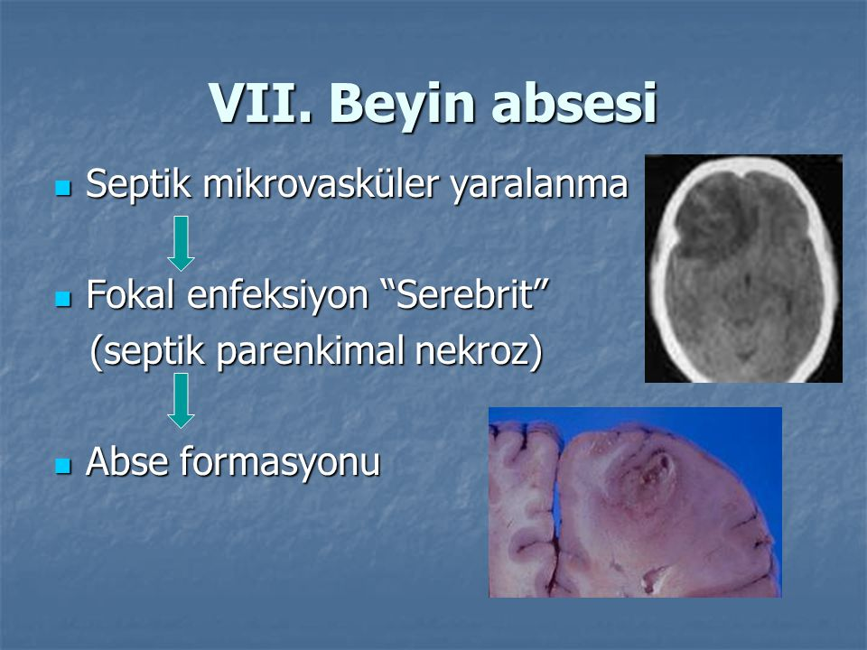 "VII. Beyin absesi Septik mikrovasküler yaralanma Septik mikrovasküler yaralanma Fokal enfeksiyon ""Serebrit"" Fokal enfeksiyon ""Serebrit"" (septik parenk"