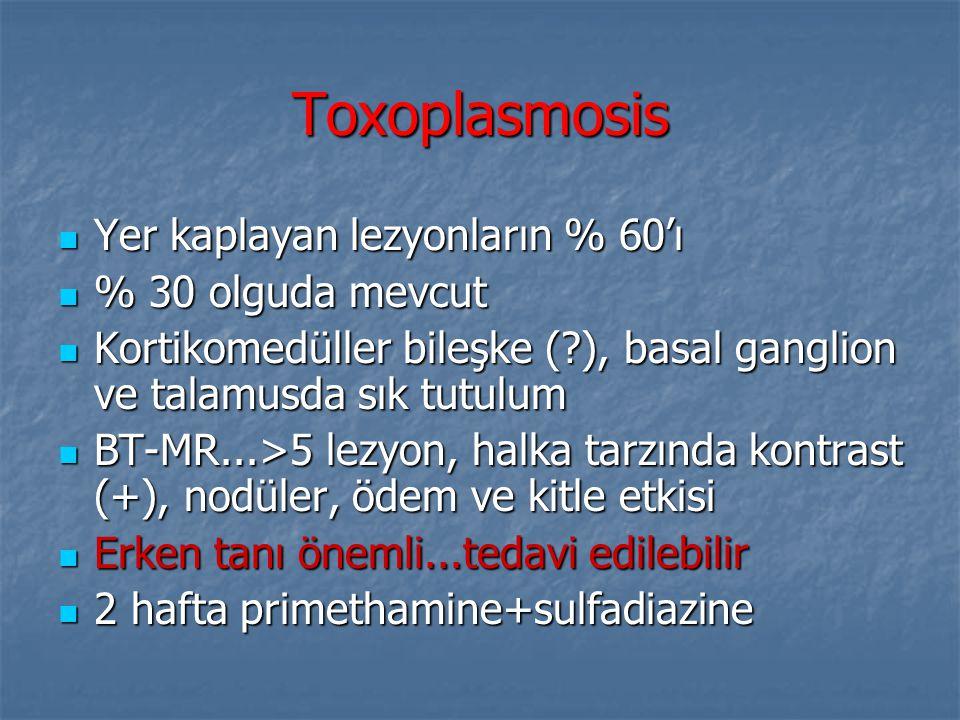 Toxoplasmosis Yer kaplayan lezyonların % 60'ı Yer kaplayan lezyonların % 60'ı % 30 olguda mevcut % 30 olguda mevcut Kortikomedüller bileşke (?), basal