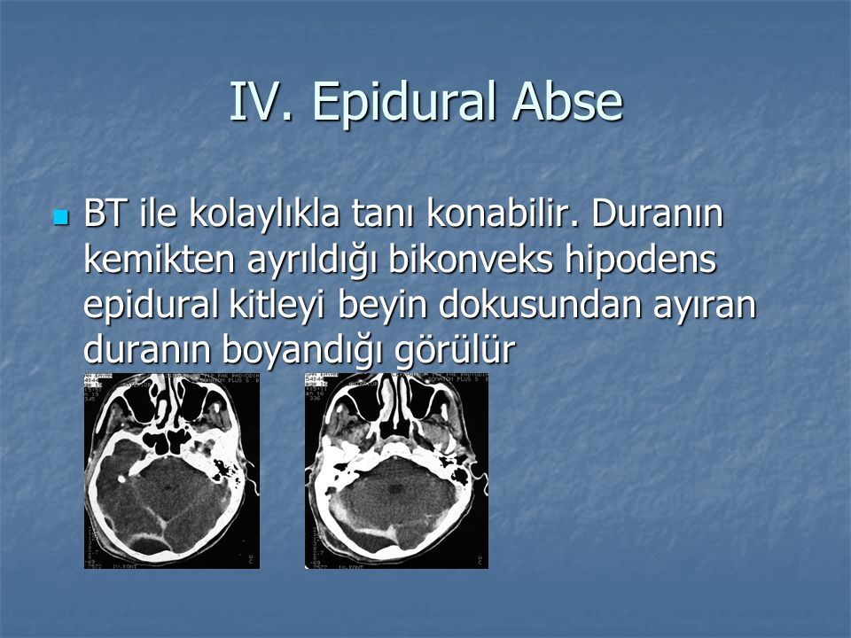 BT ile kolaylıkla tanı konabilir. Duranın kemikten ayrıldığı bikonveks hipodens epidural kitleyi beyin dokusundan ayıran duranın boyandığı görülür BT