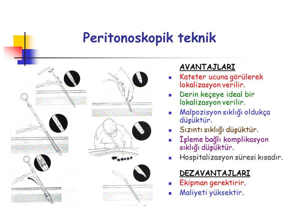 Peritonoskopik teknik AVANTAJLARI Kateter ucuna görülerek lokalizasyon verilir. Kateter ucuna görülerek lokalizasyon verilir. Derin keçeye ideal bir l