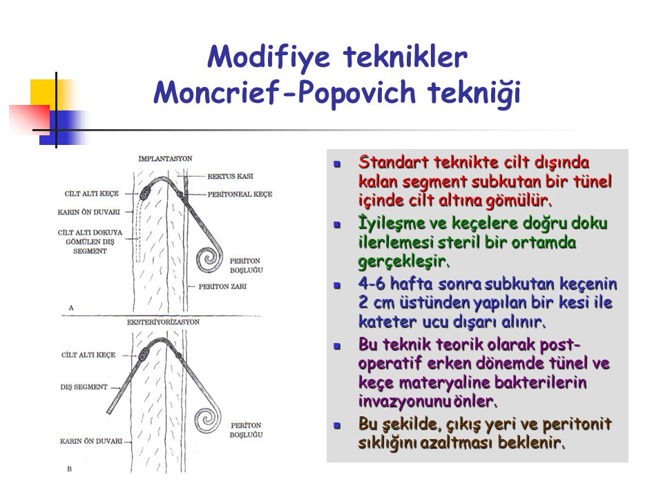Modifiye teknikler Moncrief-Popovich tekniği Standart teknikte cilt dışında kalan segment subkutan bir tünel içinde cilt altına gömülür. Standart tekn