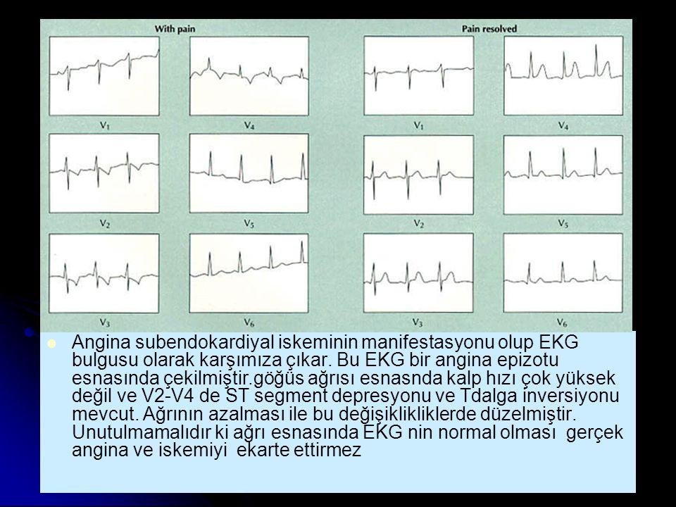 Angina subendokardiyal iskeminin manifestasyonu olup EKG bulgusu olarak karşımıza çıkar. Bu EKG bir angina epizotu esnasında çekilmiştir.göğüs ağrısı