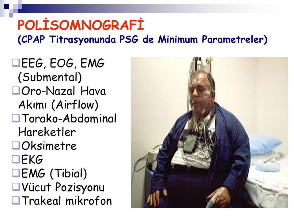 POLİSOMNOGRAFİ (CPAP Titrasyonunda PSG de Minimum Parametreler)  EEG, EOG, EMG (Submental)  Oro-Nazal Hava Akımı (Airflow)  Torako-Abdominal Hareke