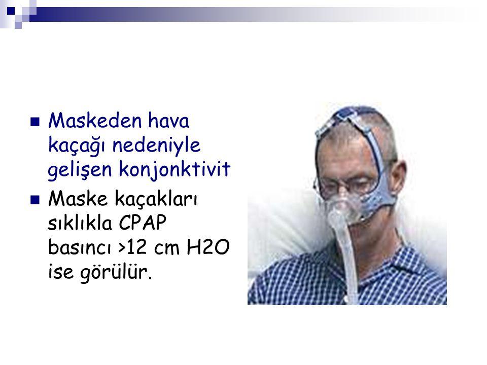Maskeden hava kaçağı nedeniyle gelişen konjonktivit Maske kaçakları sıklıkla CPAP basıncı >12 cm H2O ise görülür.