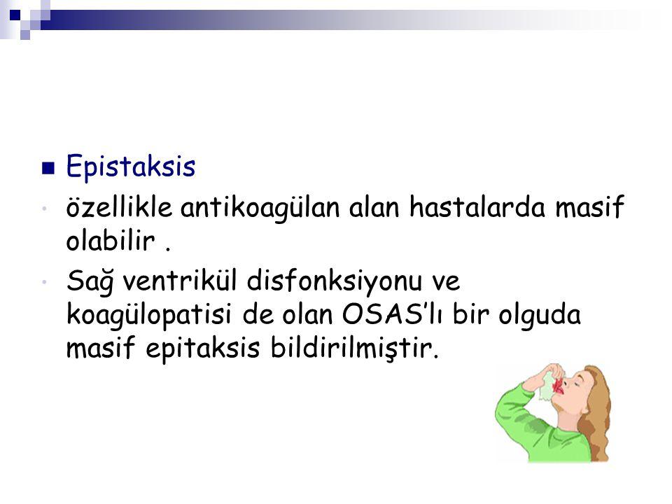 Epistaksis özellikle antikoagülan alan hastalarda masif olabilir. Sağ ventrikül disfonksiyonu ve koagülopatisi de olan OSAS'lı bir olguda masif epitak